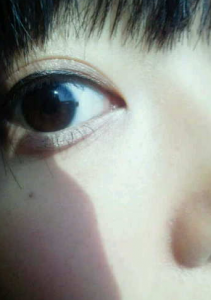 目のほくろをブログで公表した指原莉乃
